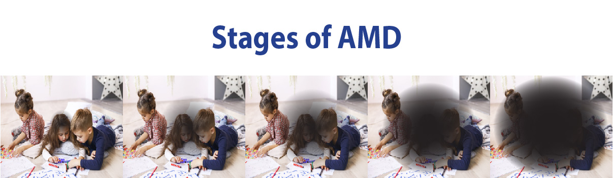AMD graphic showing the progression of the AMD